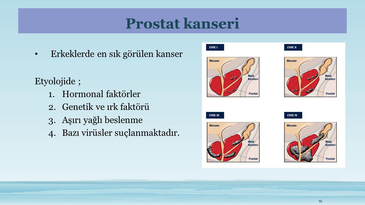 Prostat kanseri Erkeklerde en sık görülen kanser Etyolojide ; 1.Hormonal faktörler 2.Genetik ve ırk faktörü 3.Aşırı yağlı beslenme 4.Bazı virüsler suç