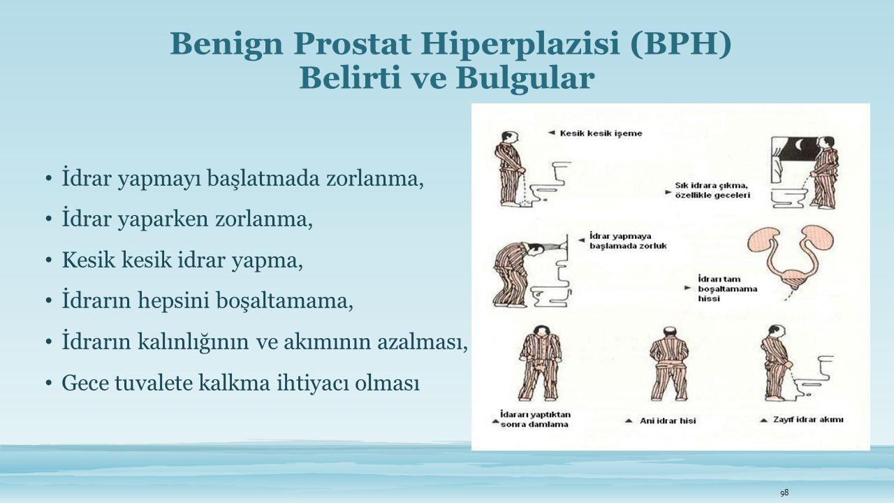 Benign Prostat Hiperplazisi (BPH) Belirti ve Bulgular İdrar yapmayı başlatmada zorlanma, İdrar yaparken zorlanma, Kesik kesik idrar yapma, İdrarın hep
