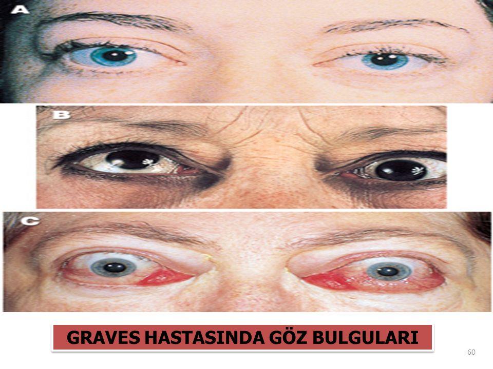 GRAVES HASTASINDA GÖZ BULGULARI 60