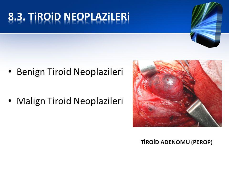 Benign Tiroid Neoplazileri Malign Tiroid Neoplazileri TİROİD ADENOMU (PEROP)
