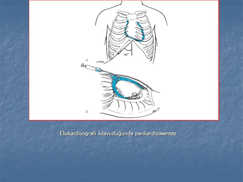 Ekokardiyografi kılavuzluğunda perikardiyosentez