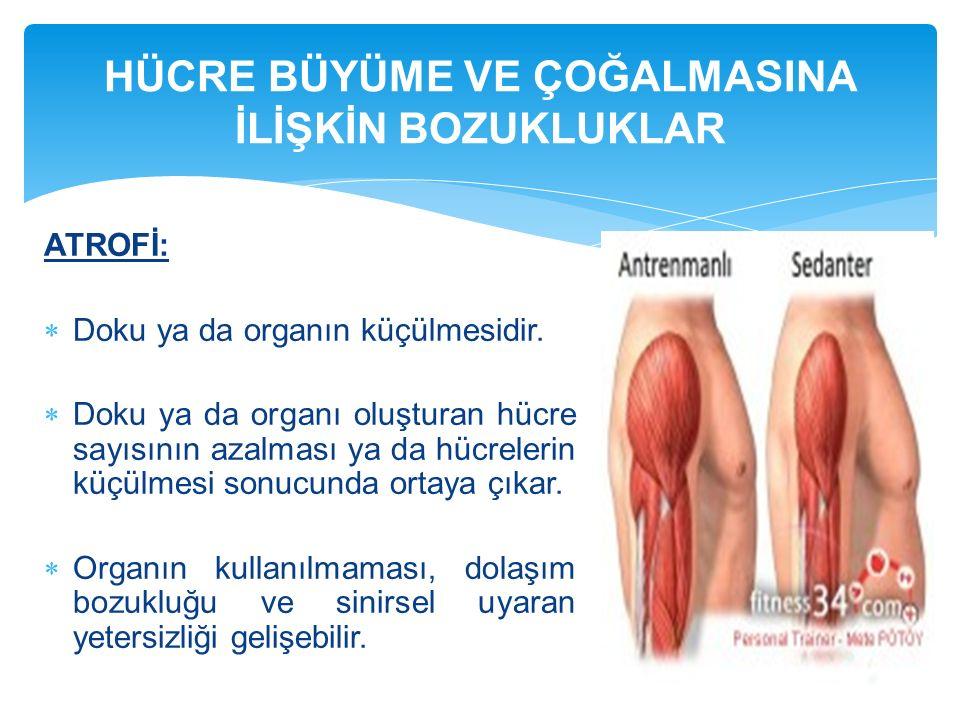 ATROFİ:  Doku ya da organın küçülmesidir.  Doku ya da organı oluşturan hücre sayısının azalması ya da hücrelerin küçülmesi sonucunda ortaya çıkar. 