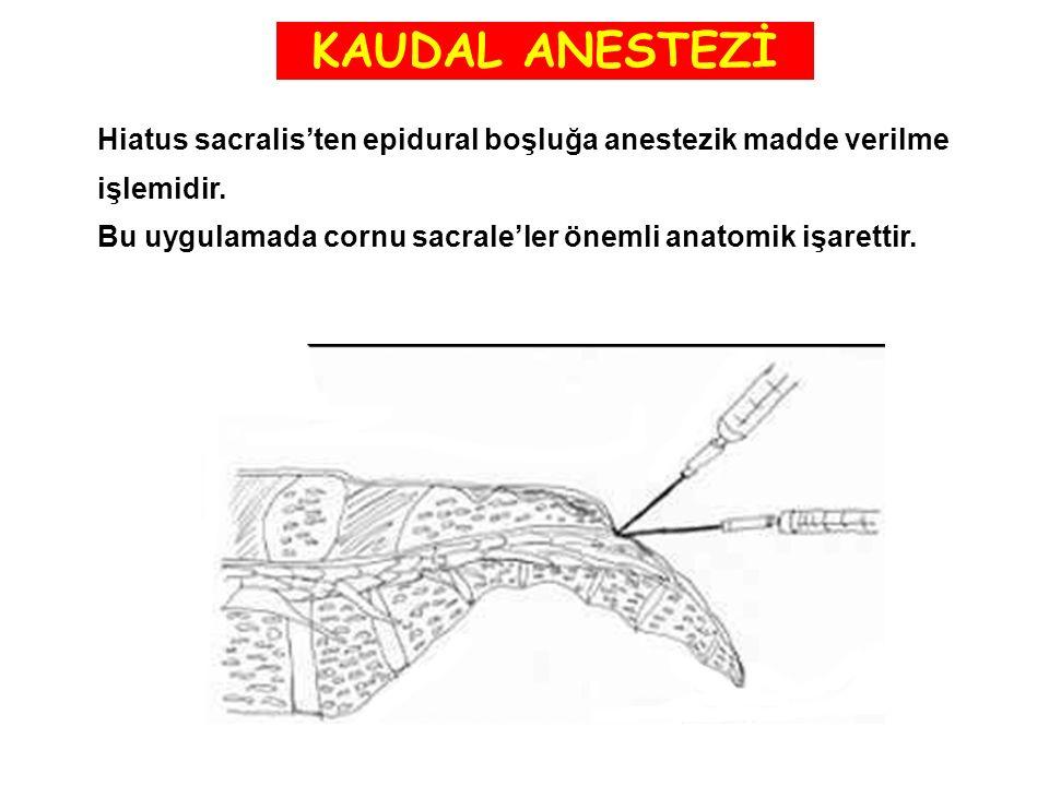 KAUDAL ANESTEZİ Hiatus sacralis'ten epidural boşluğa anestezik madde verilme işlemidir. Bu uygulamada cornu sacrale'ler önemli anatomik işarettir.