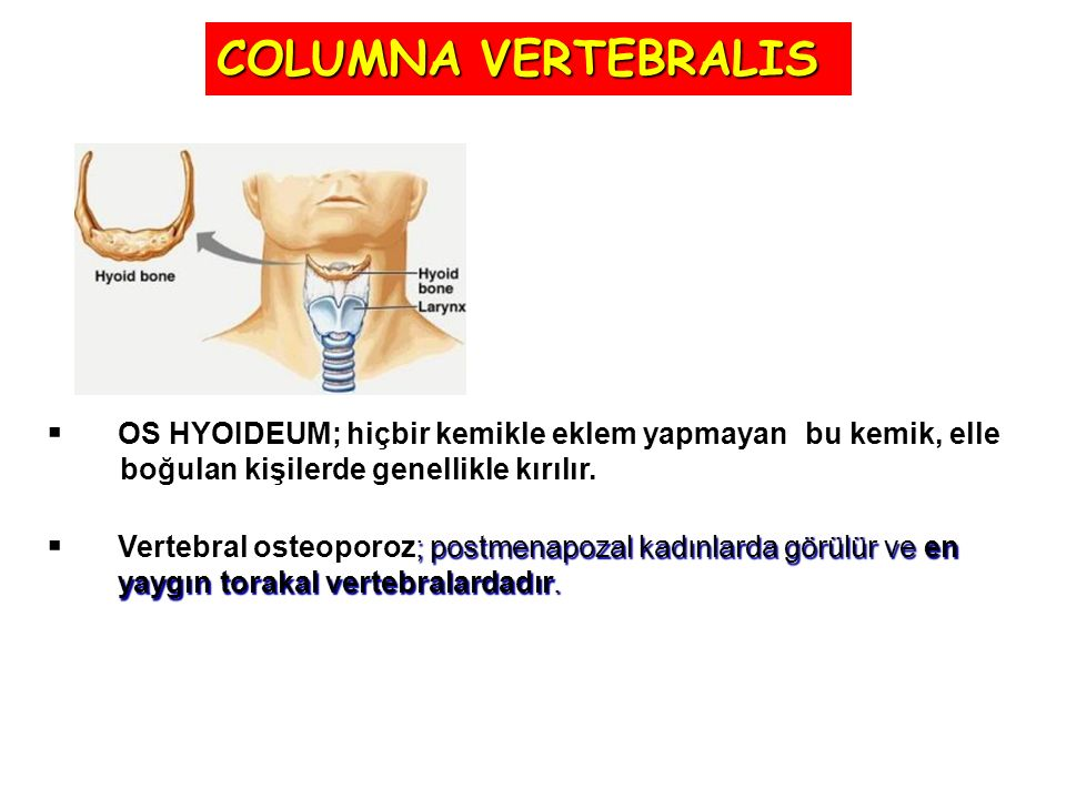  Kyphosis; torakal kaviste aşırı artış olmasıdır.