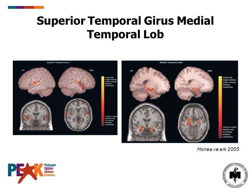 Superior Temporal Girus Medial Temporal Lob Honea ve ark 2005