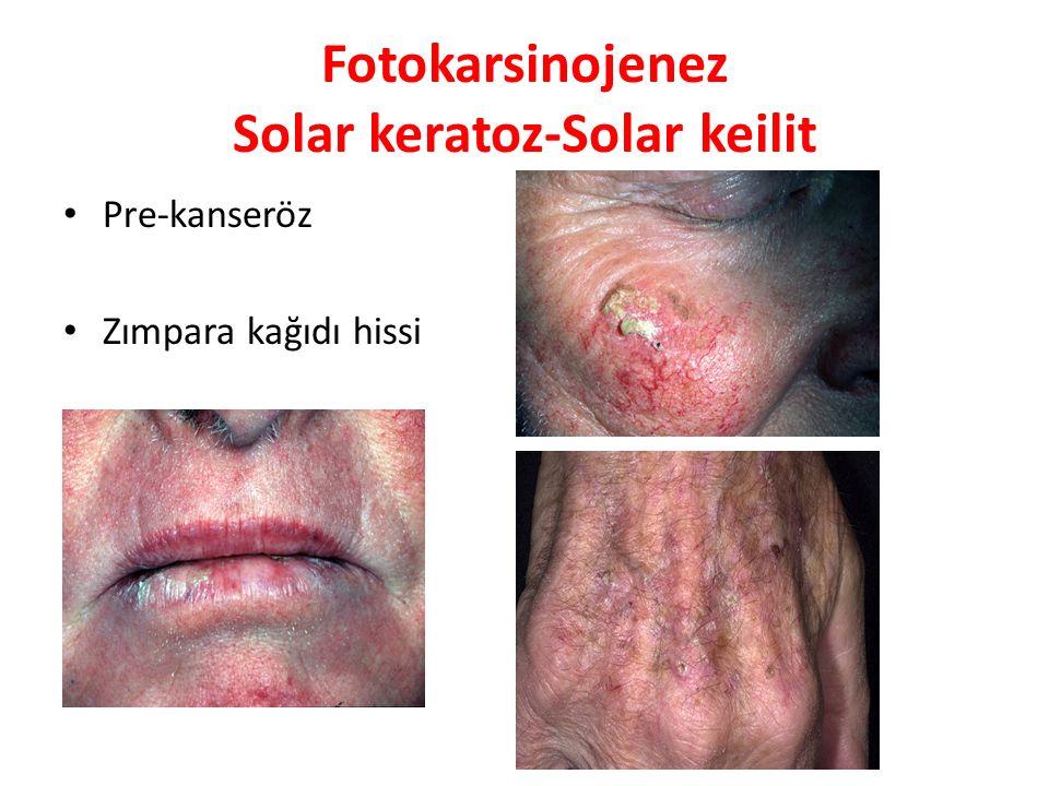 Fotokarsinojenez Solar keratoz-Solar keilit Pre-kanseröz Zımpara kağıdı hissi