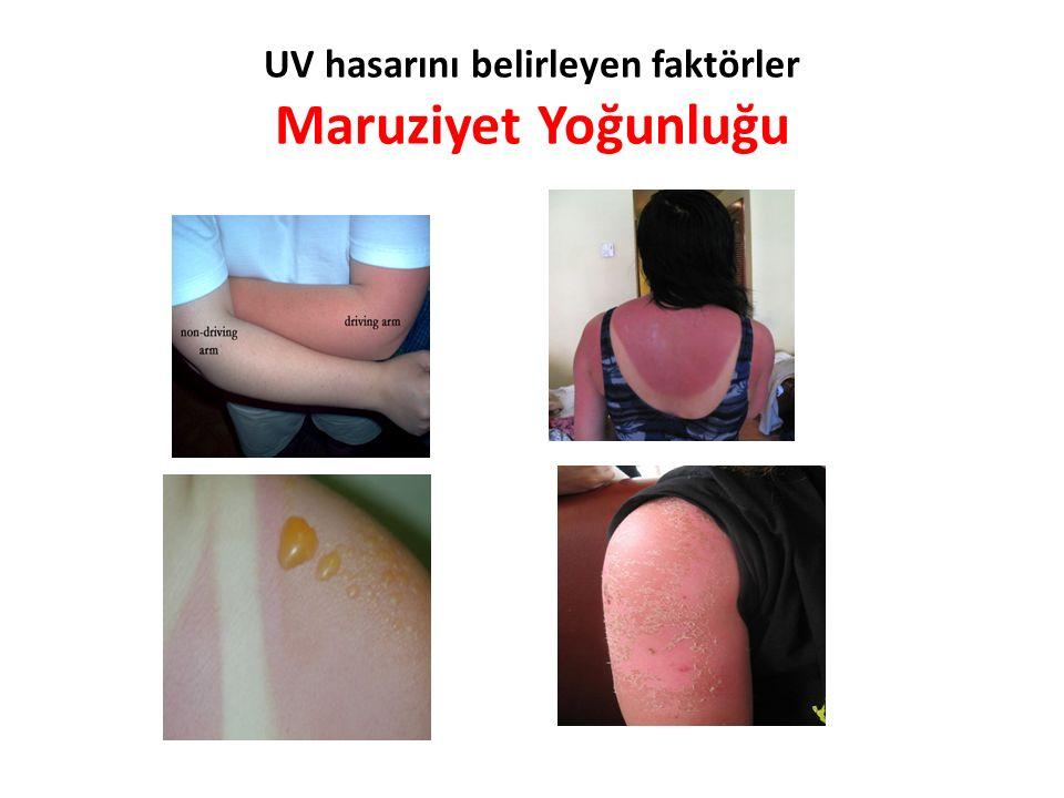 UV hasarını belirleyen faktörler Maruziyet Yoğunluğu