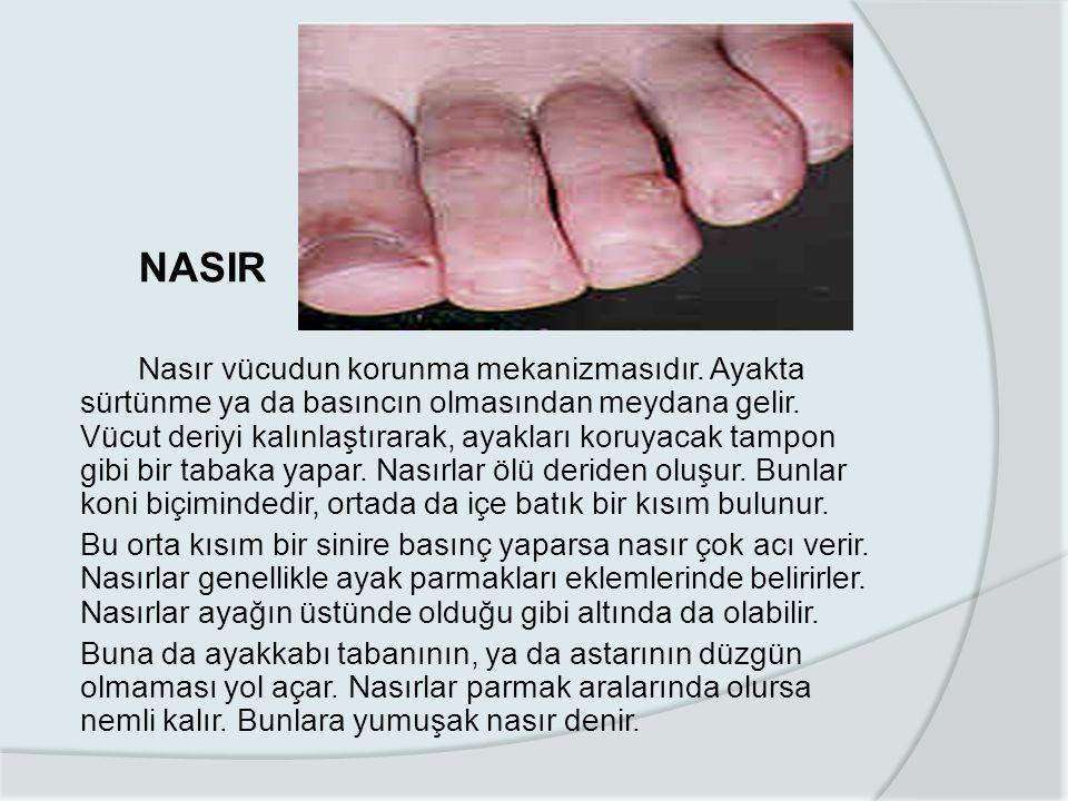 NASIR Nasır vücudun korunma mekanizmasıdır.