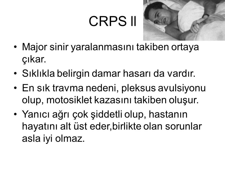 CRPS ll Major sinir yaralanmasını takiben ortaya çıkar. Sıklıkla belirgin damar hasarı da vardır. En sık travma nedeni, pleksus avulsiyonu olup, motos