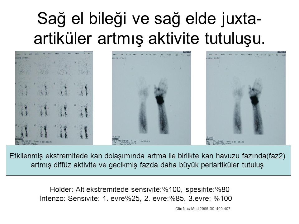 Sağ el bileği ve sağ elde juxta- artiküler artmış aktivite tutuluşu. Holder: Alt ekstremitede sensivite:%100, spesifite:%80 İntenzo: Sensivite: 1. evr