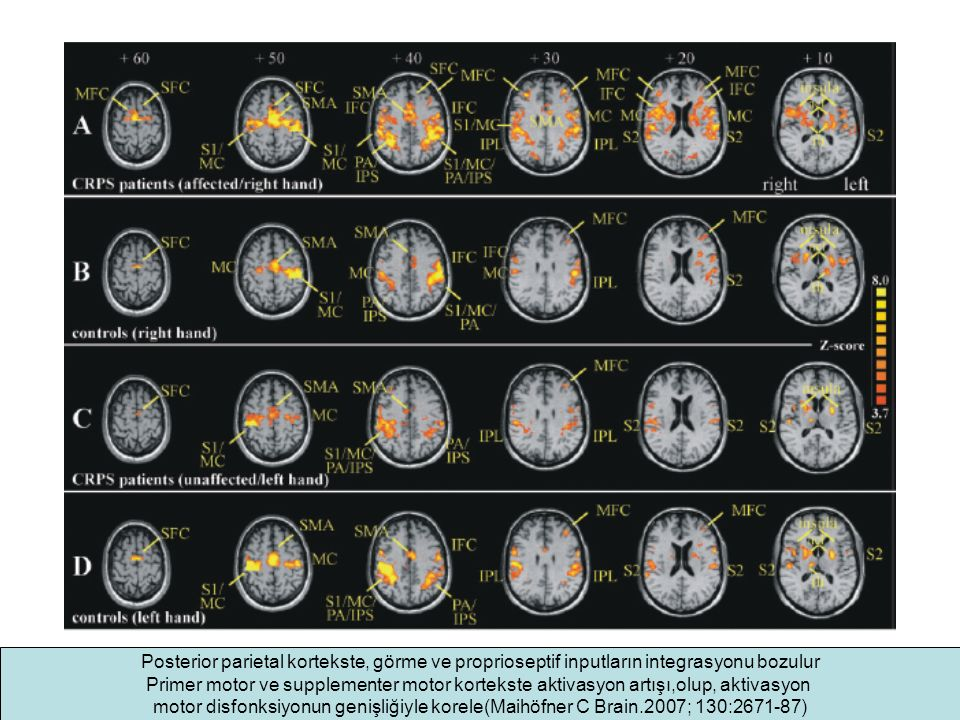 Posterior parietal kortekste, görme ve proprioseptif inputların integrasyonu bozulur Primer motor ve supplementer motor kortekste aktivasyon artışı,olup, aktivasyon motor disfonksiyonun genişliğiyle korele(Maihöfner C Brain.2007; 130:2671-87)