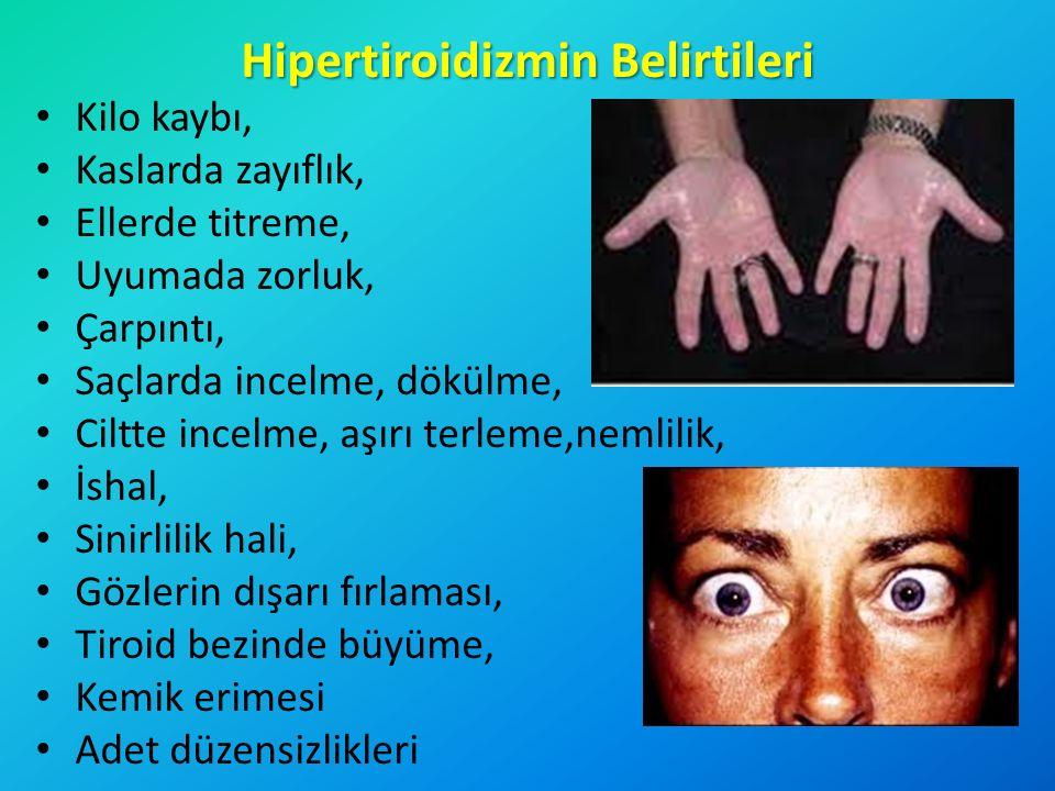 Hipertiroidizmin Belirtileri Kilo kaybı, Kaslarda zayıflık, Ellerde titreme, Uyumada zorluk, Çarpıntı, Saçlarda incelme, dökülme, Ciltte incelme, aşır