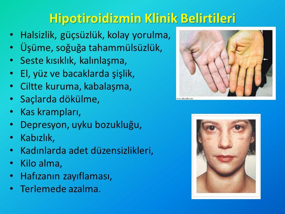 Hipotiroidizmin Klinik Belirtileri Halsizlik, güçsüzlük, kolay yorulma, Üşüme, soğuğa tahammülsüzlük, Seste kısıklık, kalınlaşma, El, yüz ve bacaklard