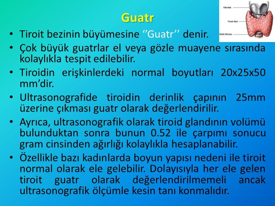 Guatr Tiroit bezinin büyümesine ''Guatr'' denir. Çok büyük guatrlar el veya gözle muayene sırasında kolaylıkla tespit edilebilir. Tiroidin erişkinlerd