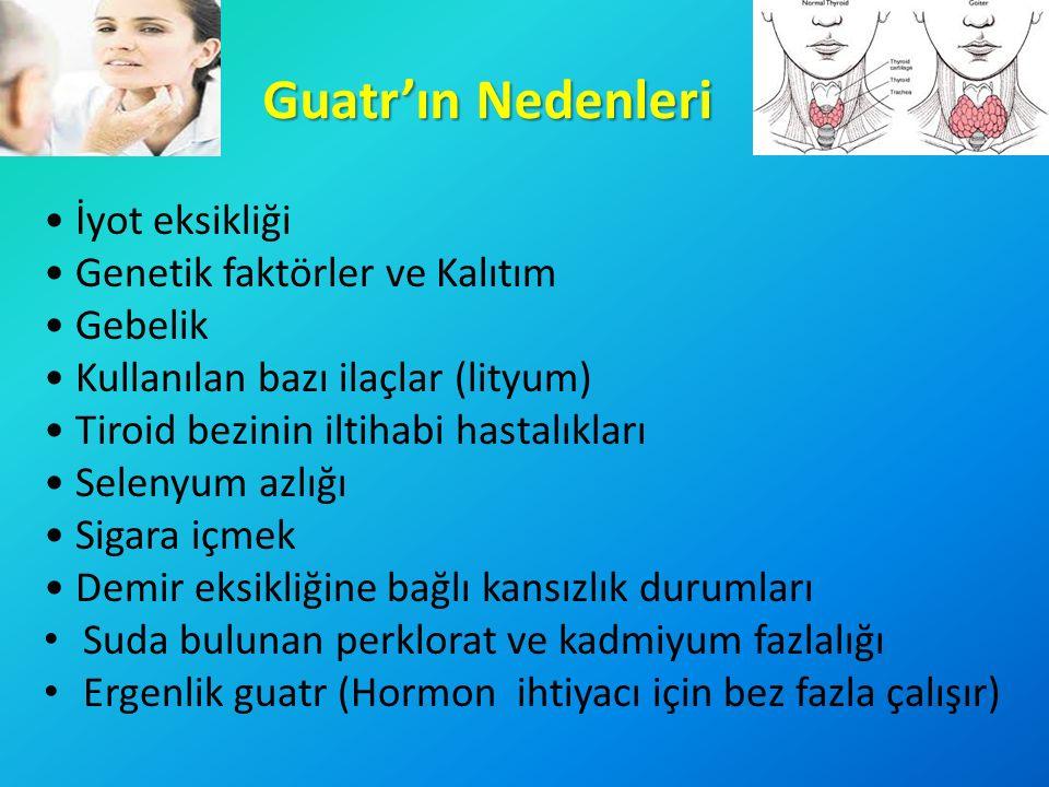 Guatr'ın Nedenleri İyot eksikliği Genetik faktörler ve Kalıtım Gebelik Kullanılan bazı ilaçlar (lityum) Tiroid bezinin iltihabi hastalıkları Selenyum