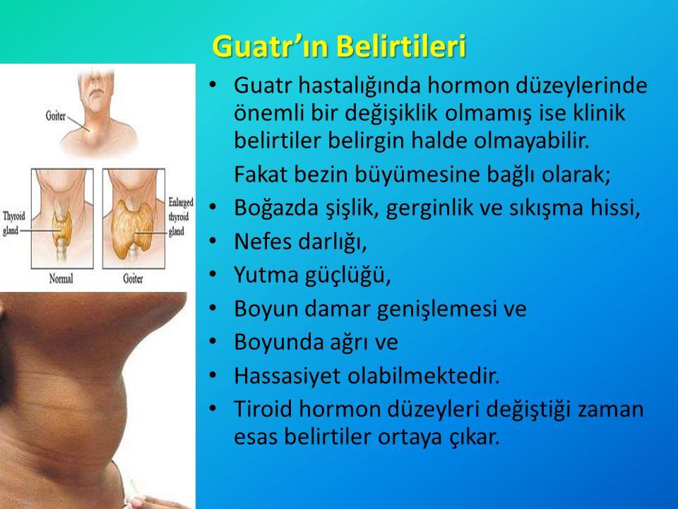 Guatr'ın Belirtileri Guatr hastalığında hormon düzeylerinde önemli bir değişiklik olmamış ise klinik belirtiler belirgin halde olmayabilir. Fakat bezi