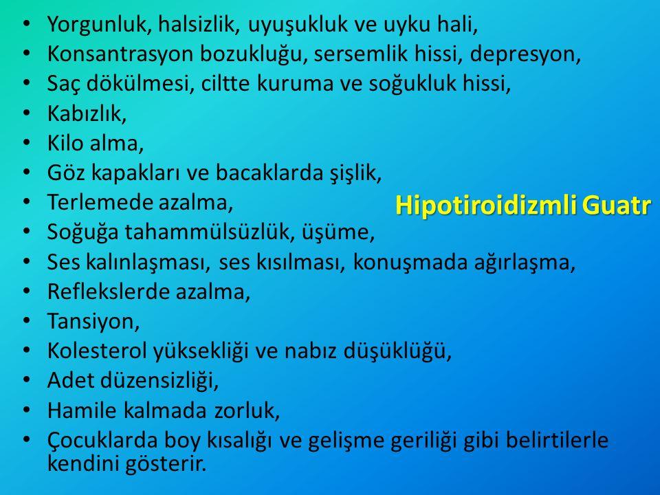 Hipotiroidizmli Guatr Yorgunluk, halsizlik, uyuşukluk ve uyku hali, Konsantrasyon bozukluğu, sersemlik hissi, depresyon, Saç dökülmesi, ciltte kuruma