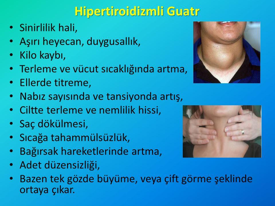 Hipertiroidizmli Guatr Sinirlilik hali, Aşırı heyecan, duygusallık, Kilo kaybı, Terleme ve vücut sıcaklığında artma, Ellerde titreme, Nabız sayısında