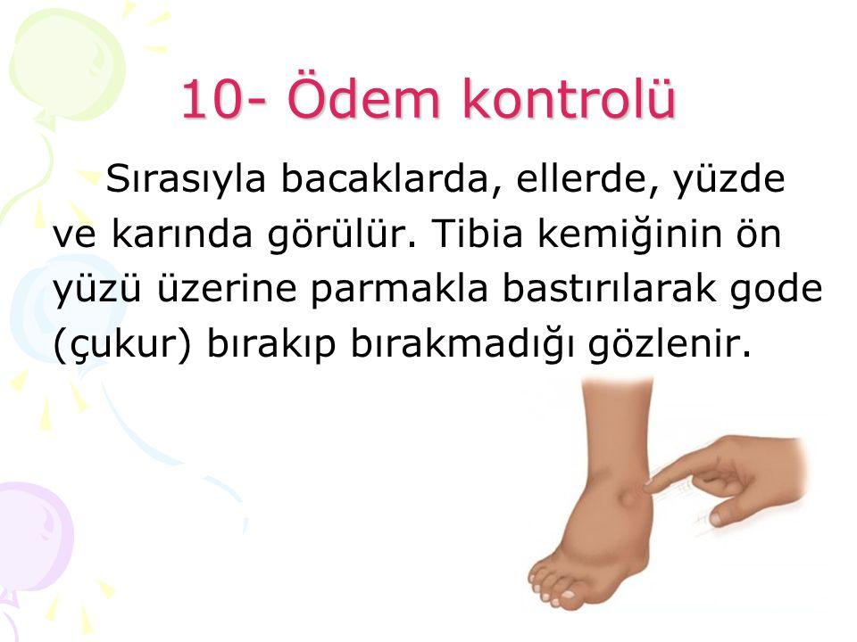 10- Ödem kontrolü Sırasıyla bacaklarda, ellerde, yüzde ve karında görülür. Tibia kemiğinin ön yüzü üzerine parmakla bastırılarak gode (çukur) bırakıp