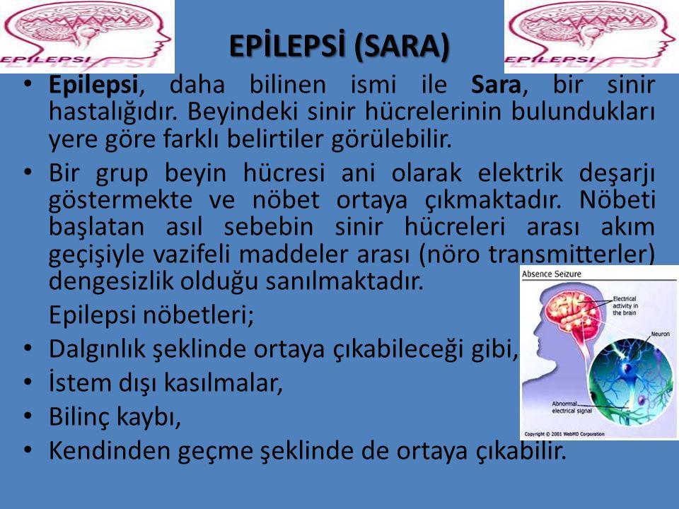 EPİLEPSİ (SARA) Epilepsi, daha bilinen ismi ile Sara, bir sinir hastalığıdır. Beyindeki sinir hücrelerinin bulundukları yere göre farklı belirtiler gö