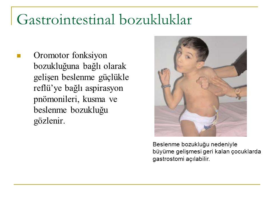 Gastrointestinal bozukluklar Oromotor fonksiyon bozukluğuna bağlı olarak gelişen beslenme güçlükle reflü'ye bağlı aspirasyon pnömonileri, kusma ve bes