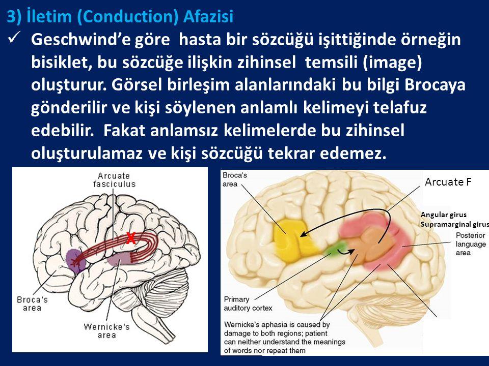3) İletim (Conduction) Afazisi Geschwind'e göre hasta bir sözcüğü işittiğinde örneğin bisiklet, bu sözcüğe ilişkin zihinsel temsili (image) oluşturur.