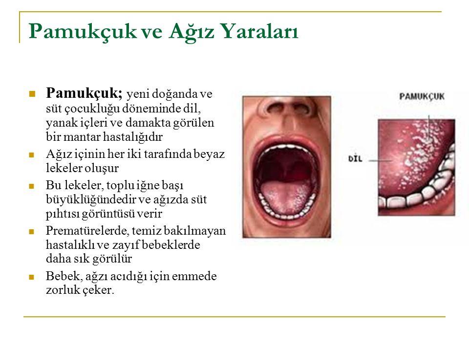 Pamukçuk ve Ağız Yaraları Pamukçuk; yeni doğanda ve süt çocukluğu döneminde dil, yanak içleri ve damakta görülen bir mantar hastalığıdır Ağız içinin h