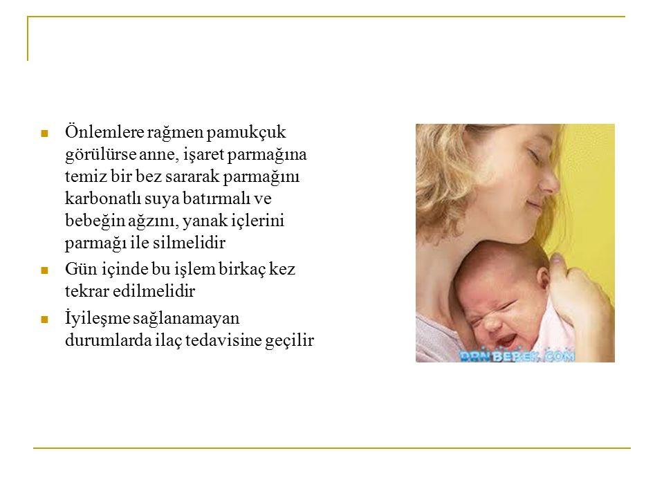 Önlemlere rağmen pamukçuk görülürse anne, işaret parmağına temiz bir bez sararak parmağını karbonatlı suya batırmalı ve bebeğin ağzını, yanak içlerini