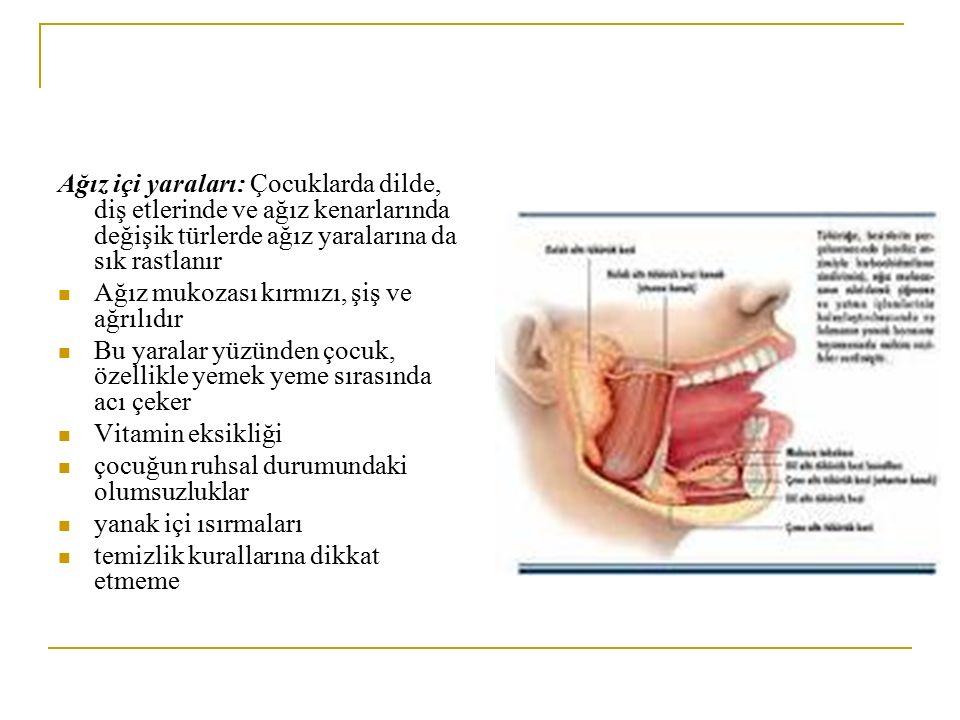 Ağız içi yaraları: Çocuklarda dilde, diş etlerinde ve ağız kenarlarında değişik türlerde ağız yaralarına da sık rastlanır Ağız mukozası kırmızı, şiş v