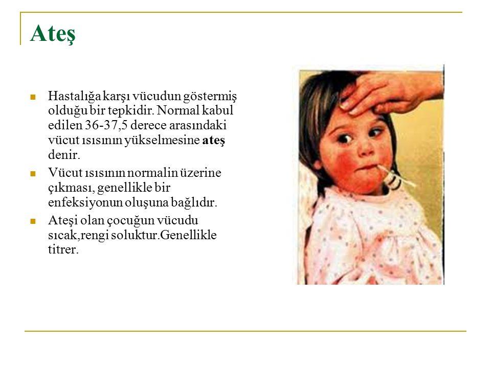 Döküntüler Bazı hastalıklarda (kızıl, kızamık gibi) vücut üzerinde döküntüler görülebilir.