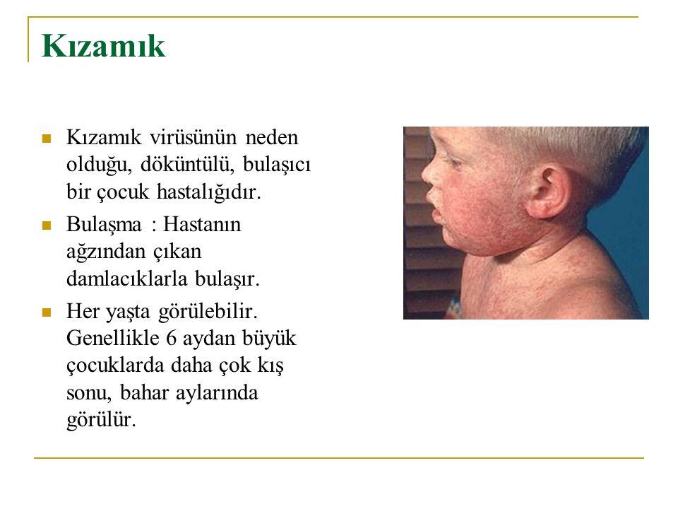 Kızamık Kızamık virüsünün neden olduğu, döküntülü, bulaşıcı bir çocuk hastalığıdır. Bulaşma : Hastanın ağzından çıkan damlacıklarla bulaşır. Her yaşta