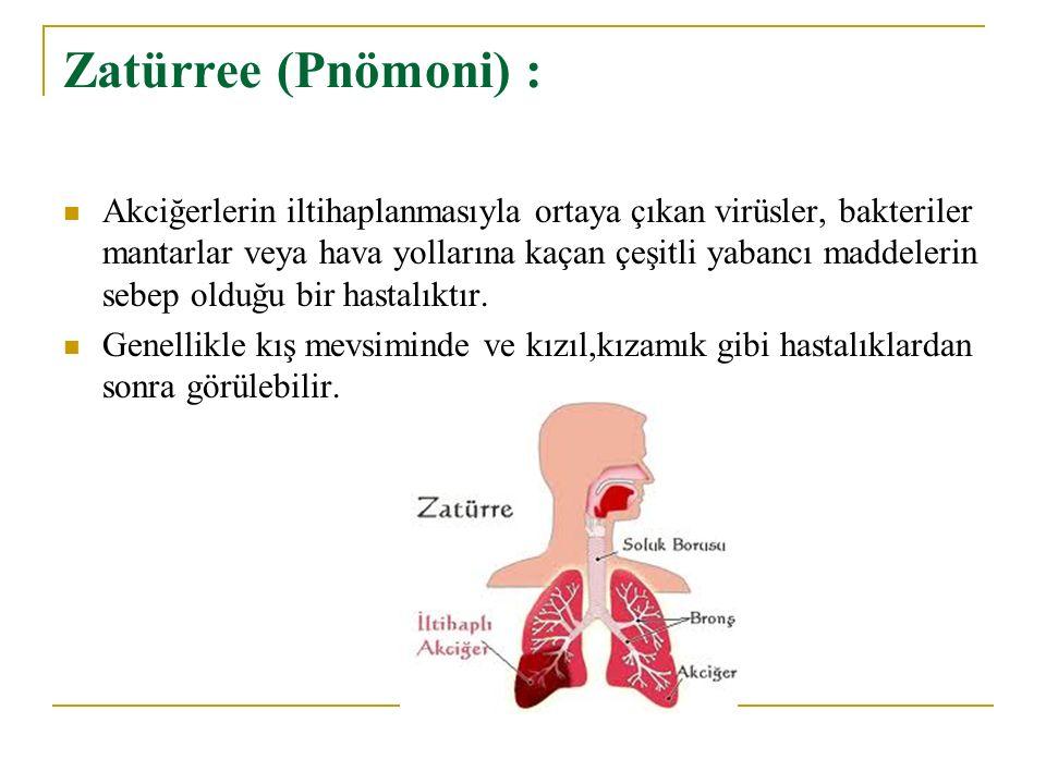 Zatürree (Pnömoni) : Akciğerlerin iltihaplanmasıyla ortaya çıkan virüsler, bakteriler mantarlar veya hava yollarına kaçan çeşitli yabancı maddelerin s