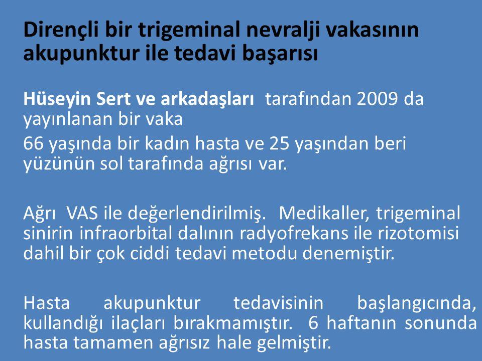 Dirençli bir trigeminal nevralji vakasının akupunktur ile tedavi başarısı Hüseyin Sert ve arkadaşları tarafından 2009 da yayınlanan bir vaka 66 yaşınd