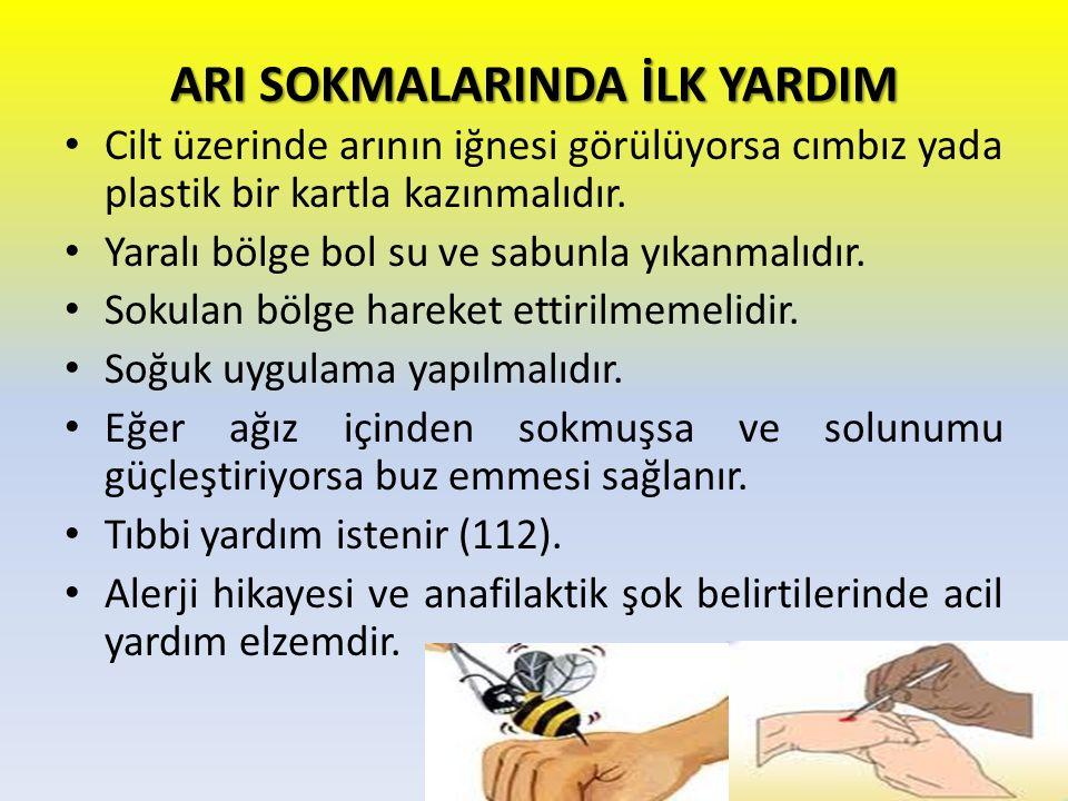 ARI SOKMALARINDA İLK YARDIM Cilt üzerinde arının iğnesi görülüyorsa cımbız yada plastik bir kartla kazınmalıdır. Yaralı bölge bol su ve sabunla yıkanm