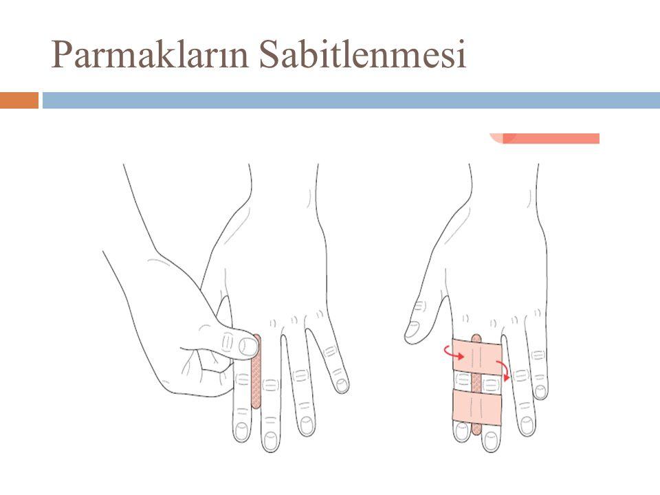 Parmakların Sabitlenmesi