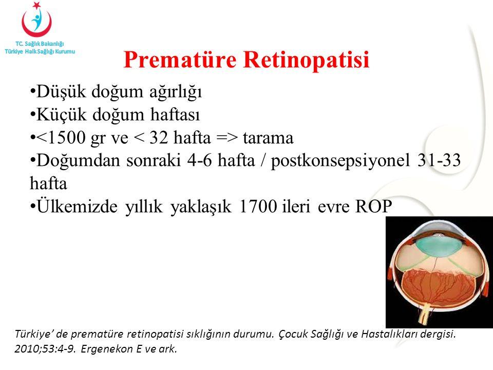 Prematüre Retinopatisi Düşük doğum ağırlığı Küçük doğum haftası tarama Doğumdan sonraki 4-6 hafta / postkonsepsiyonel 31-33 hafta Ülkemizde yıllık yaklaşık 1700 ileri evre ROP Türkiye' de prematüre retinopatisi sıklığının durumu.