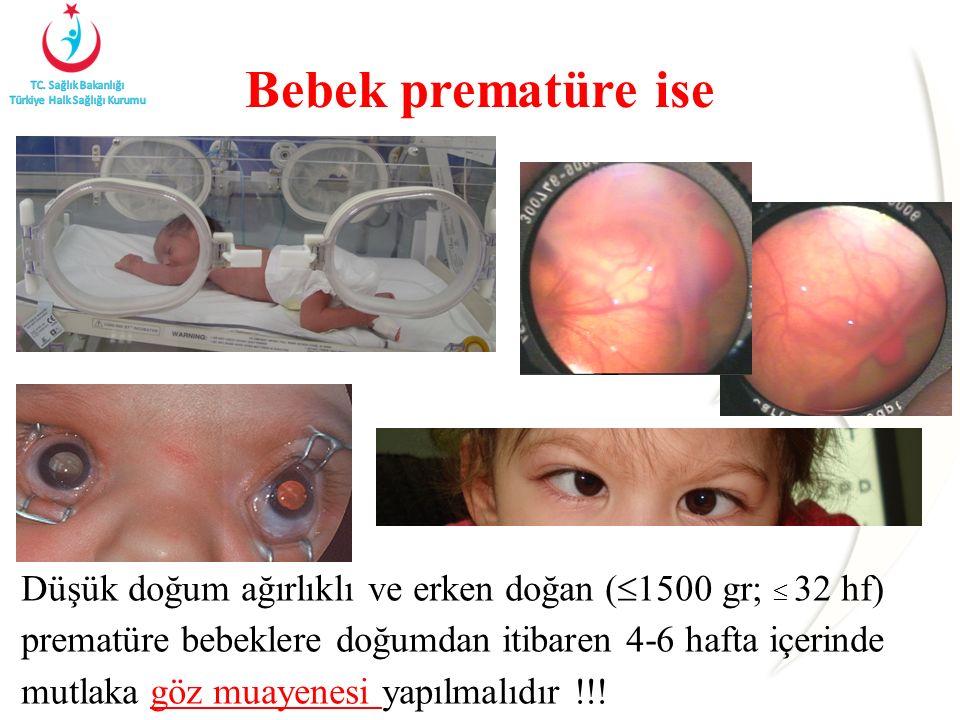 Düşük doğum ağırlıklı ve erken doğan (  1500 gr;  32 hf) prematüre bebeklere doğumdan itibaren 4-6 hafta içerinde mutlaka göz muayenesi yapılmalıdır
