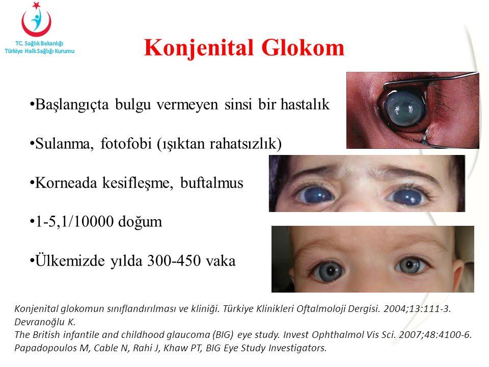 Konjenital Glokom Başlangıçta bulgu vermeyen sinsi bir hastalık Sulanma, fotofobi (ışıktan rahatsızlık) Korneada kesifleşme, buftalmus 1-5,1/10000 doğ