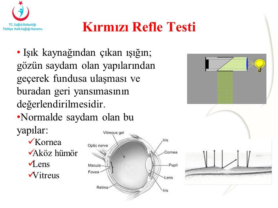 Kırmızı Refle Testi Işık kaynağından çıkan ışığın; gözün saydam olan yapılarından geçerek fundusa ulaşması ve buradan geri yansımasının değerlendirilmesidir.