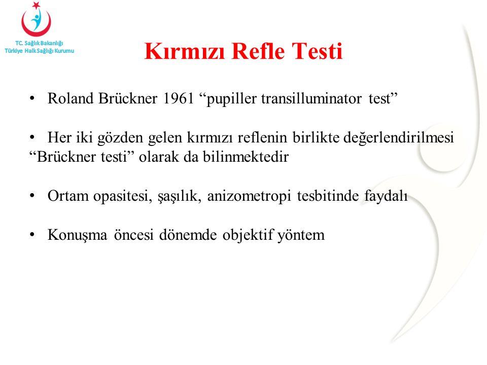 Kırmızı Refle Testi Roland Brückner 1961 pupiller transilluminator test Her iki gözden gelen kırmızı reflenin birlikte değerlendirilmesi Brückner testi olarak da bilinmektedir Ortam opasitesi, şaşılık, anizometropi tesbitinde faydalı Konuşma öncesi dönemde objektif yöntem