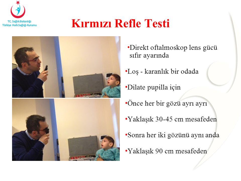 Kırmızı Refle Testi Direkt oftalmoskop lens gücü sıfır ayarında Loş - karanlık bir odada Dilate pupilla için Önce her bir gözü ayrı ayrı Yaklaşık 30-45 cm mesafeden Sonra her iki gözünü aynı anda Yaklaşık 90 cm mesafeden