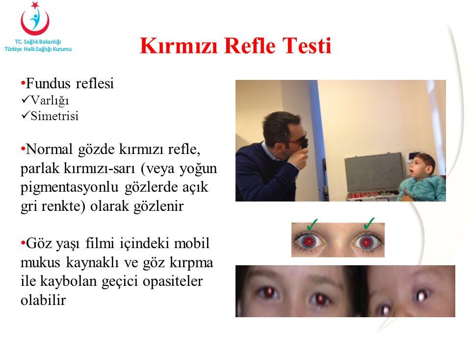 Kırmızı Refle Testi Fundus reflesi Varlığı Simetrisi Normal gözde kırmızı refle, parlak kırmızı-sarı (veya yoğun pigmentasyonlu gözlerde açık gri renkte) olarak gözlenir Göz yaşı filmi içindeki mobil mukus kaynaklı ve göz kırpma ile kaybolan geçici opasiteler olabilir