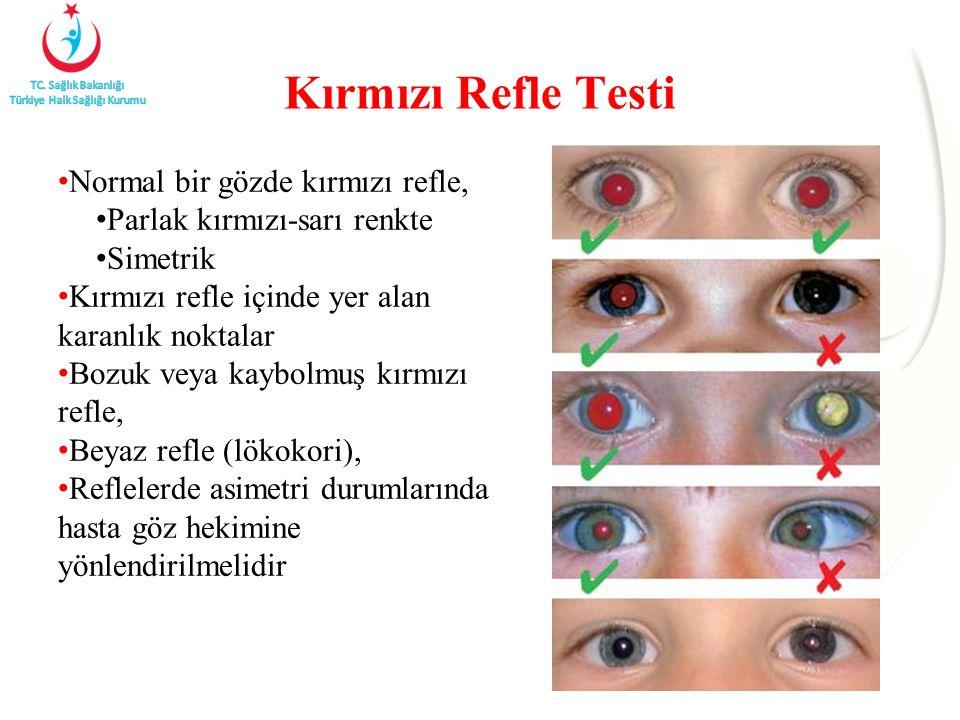 Kırmızı Refle Testi Normal bir gözde kırmızı refle, Parlak kırmızı-sarı renkte Simetrik Kırmızı refle içinde yer alan karanlık noktalar Bozuk veya kaybolmuş kırmızı refle, Beyaz refle (lökokori), Reflelerde asimetri durumlarında hasta göz hekimine yönlendirilmelidir