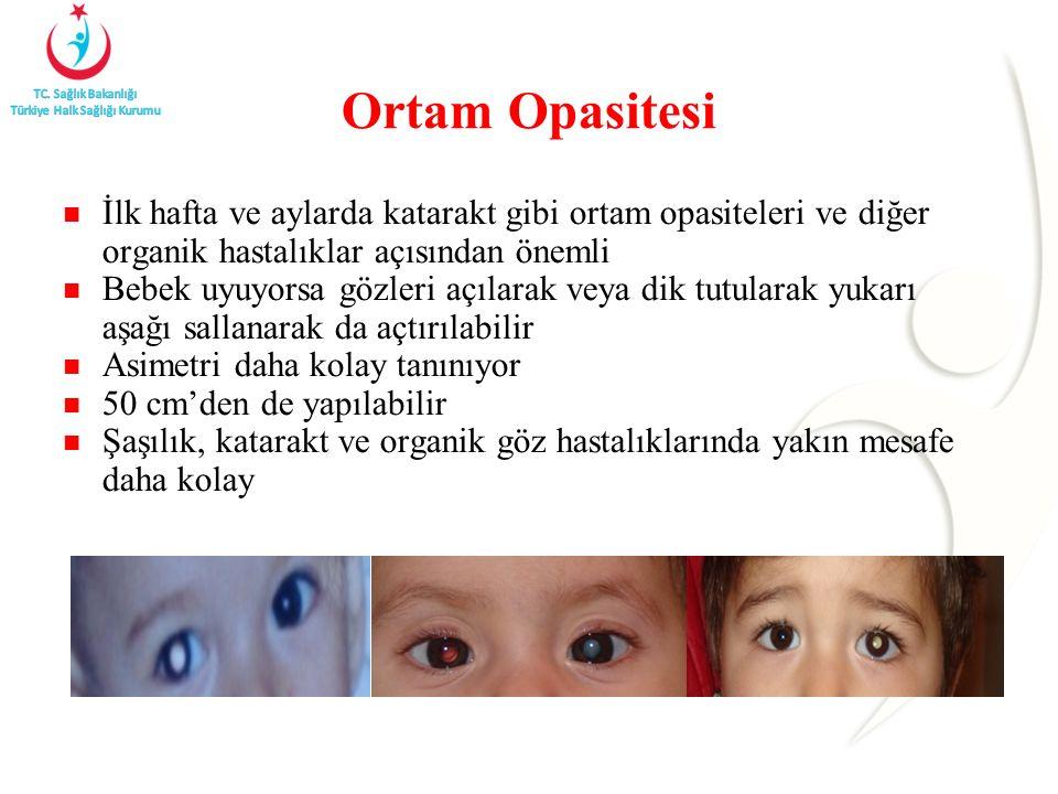 Ortam Opasitesi İlk hafta ve aylarda katarakt gibi ortam opasiteleri ve diğer organik hastalıklar açısından önemli Bebek uyuyorsa gözleri açılarak veya dik tutularak yukarı aşağı sallanarak da açtırılabilir Asimetri daha kolay tanınıyor 50 cm'den de yapılabilir Şaşılık, katarakt ve organik göz hastalıklarında yakın mesafe daha kolay