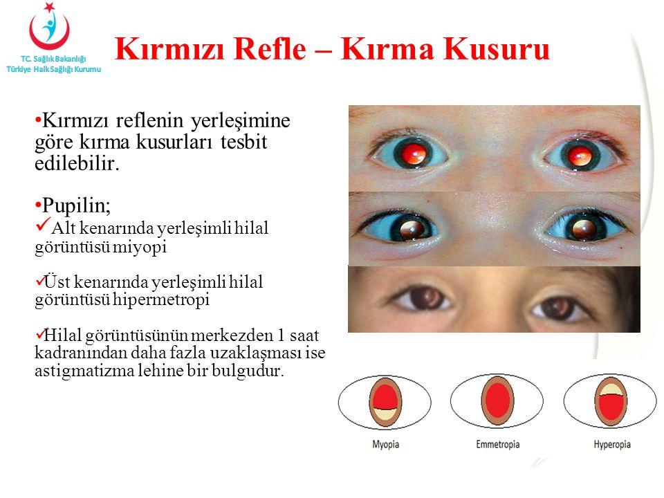 Kırmızı Refle – Kırma Kusuru Kırmızı reflenin yerleşimine göre kırma kusurları tesbit edilebilir. Pupilin; Alt kenarında yerleşimli hilal görüntüsü mi