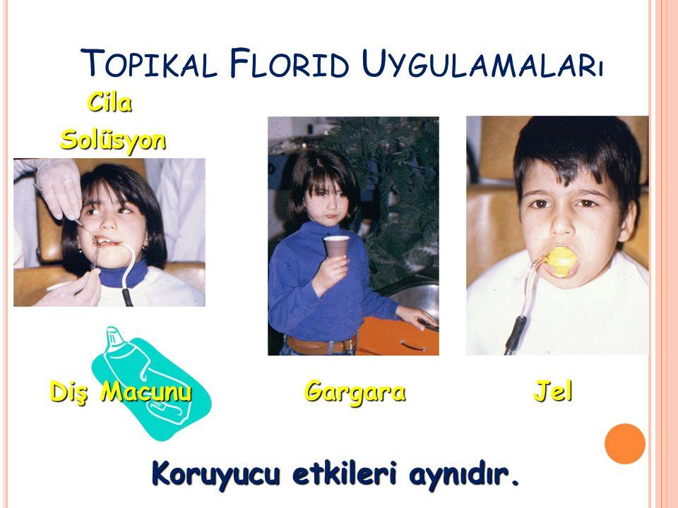 T OPIKAL F LORID U YGULAMALARı JelGargara Solüsyon Cila Diş Macunu Koruyucu etkileri aynıdır.