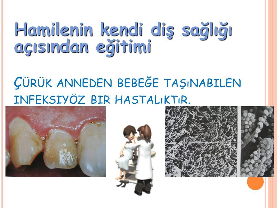 Ç ÜRÜK ANNEDEN BEBEĞE TAŞıNABILEN INFEKSIYÖZ BIR HASTALıKTıR. Hamilenin kendi diş sağlığı açısından eğitimi
