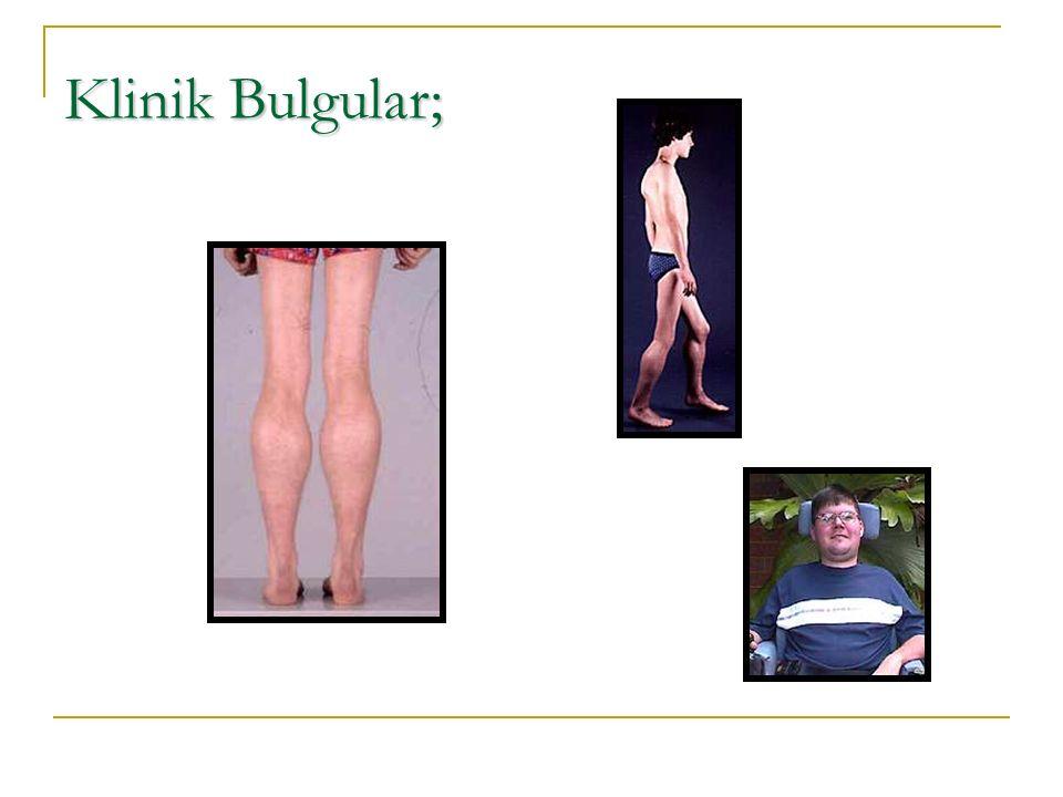 Klinik Bulgular;