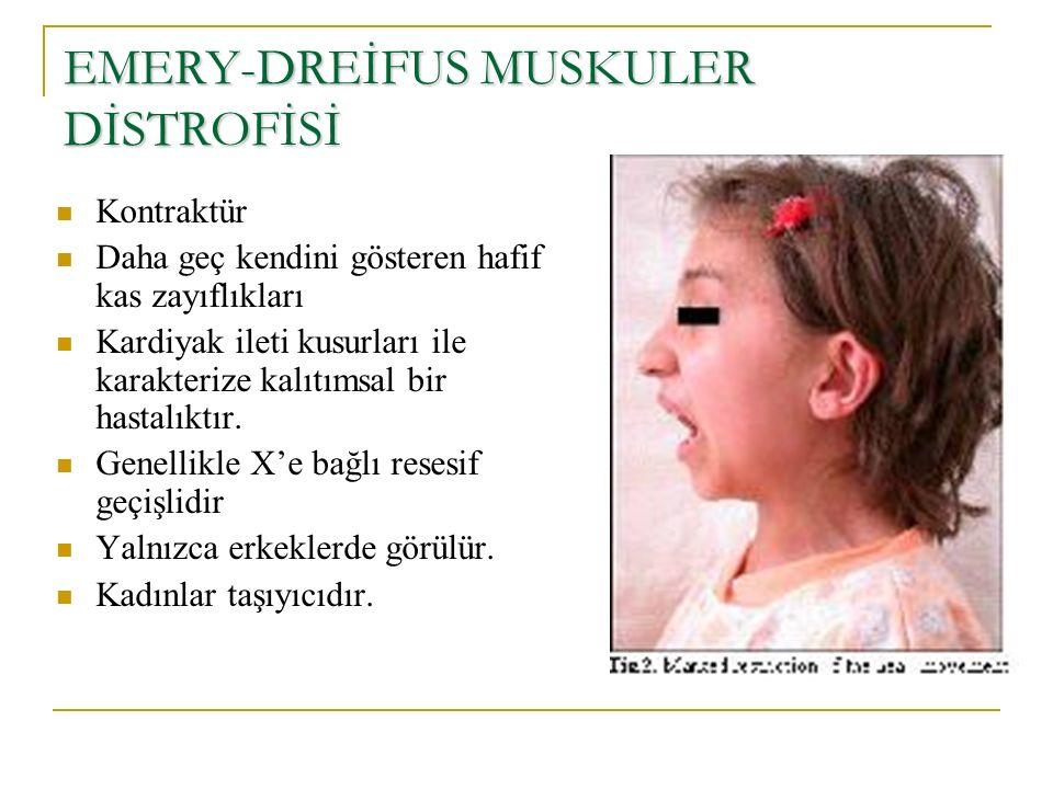 EMERY-DREİFUS MUSKULER DİSTROFİSİ Kontraktür Daha geç kendini gösteren hafif kas zayıflıkları Kardiyak ileti kusurları ile karakterize kalıtımsal bir hastalıktır.