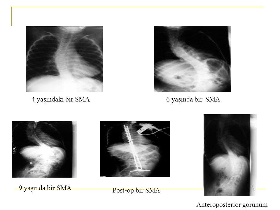 4 yaşındaki bir SMA6 yaşında bir SMA Anteroposterior görünüm 9 yaşında bir SMA Post-op bir SMA